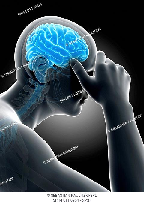 Human headache, computer illustration