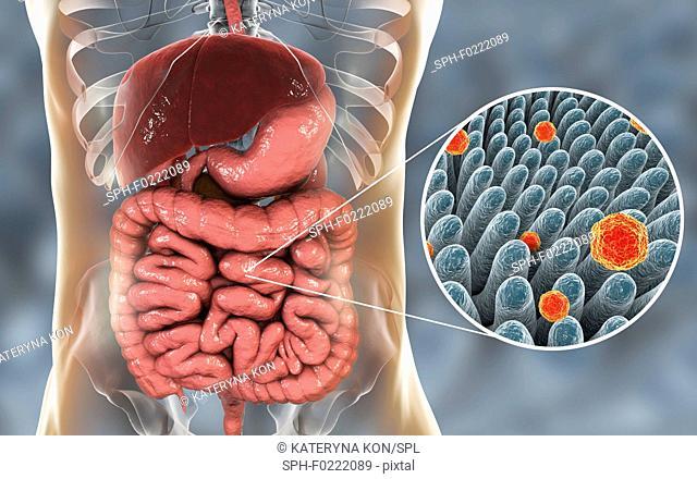 Hepatitis A viruses in intestine, illustration
