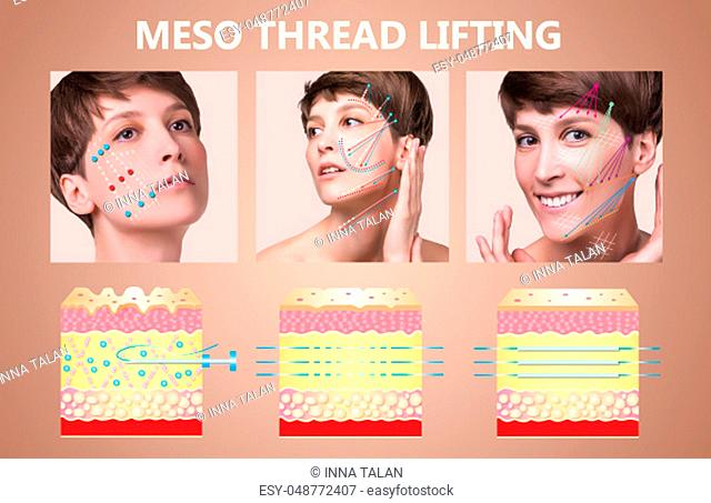 Meso thread Lift. Young female with clean fresh skin. Beautiful woman. face and neck. Lifting by threads concept