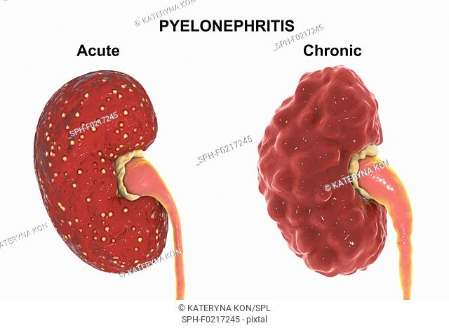 Comparison of gross anatomy of acute and chronic pyelonephri