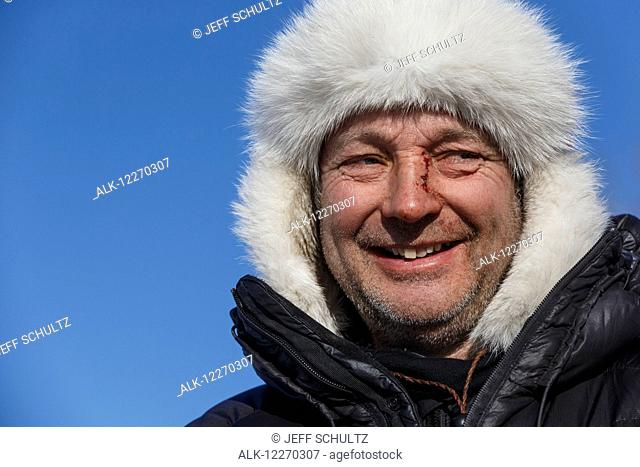 Portrait of Ralph Johannessen showing injuries from a crash, Ruby, Iditarod Sled Dog Race 2014