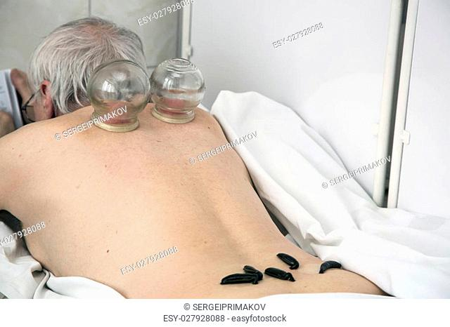 Multiple medical vacuum cupping therapy and medical leech of the human body