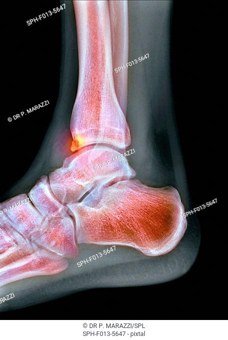 Tibial spur. Coloured X-ray of the foot of a 22-year-old male patient with a spur (osteophyte, highlighted) affecting the tibia (shin bone)