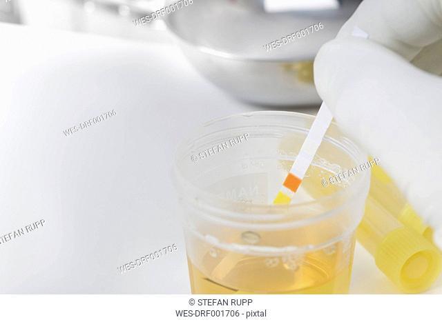 Routine test, urine rapid test, urine test strip, urine sample