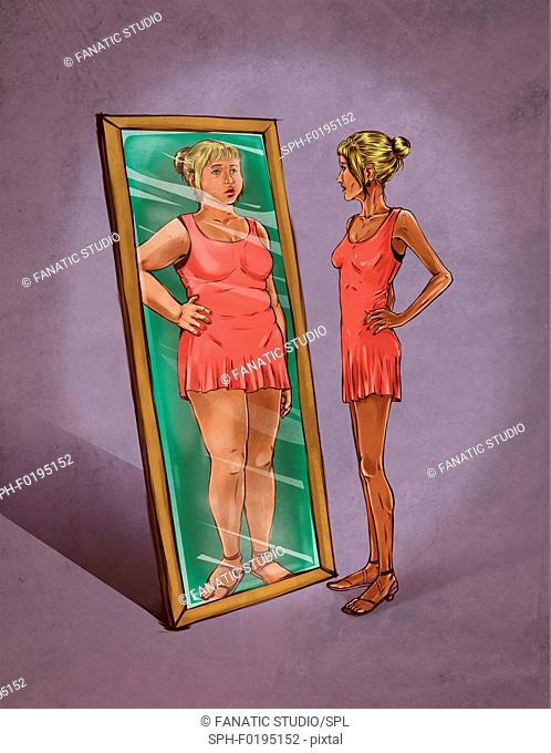 Illustration of eating disorder
