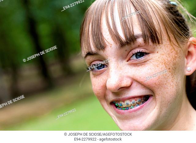 Portrait of a 12 year old girl with freckles and braces smiling at the camera