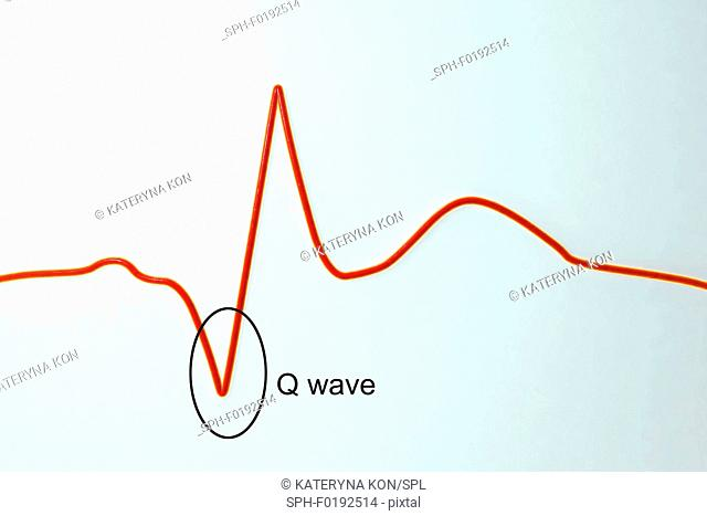 ECG in myocardial infarction, illustration