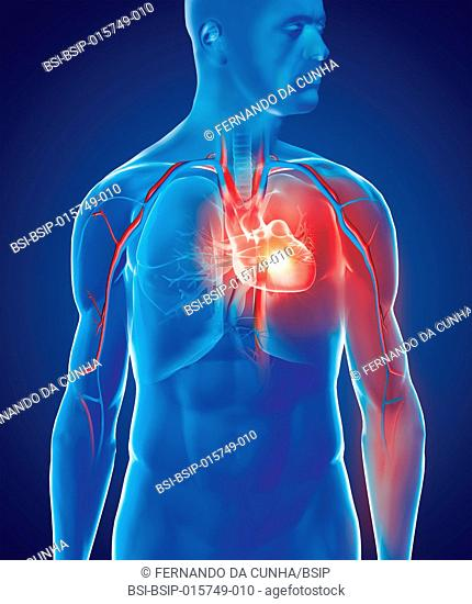 Myocardial infarction causes pain that starts in the chest and radiates into the shoulder and arm. A clot obstructs a coronary artery resulting in an infarction...