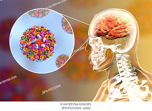 Western equine encephalitis viruses infecting human brain, i