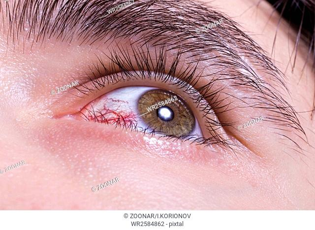 green men eye with red blood vessels