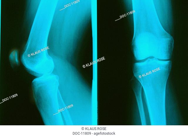 X-ray plate of a knee results negative