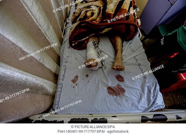 Blood stains are seen on the sheets of a hospital bed next to a Palestinian man who was injured during clashes with Israeli Security Forces near the borders