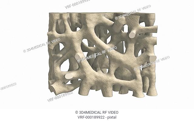 An animation depicting bone mineral loss in osteoporosis
