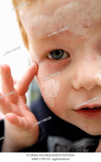 Child with chicken pox spots on face and calamine lotion