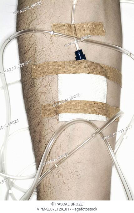 Close-up of an iv drip bandaged on a person's arm