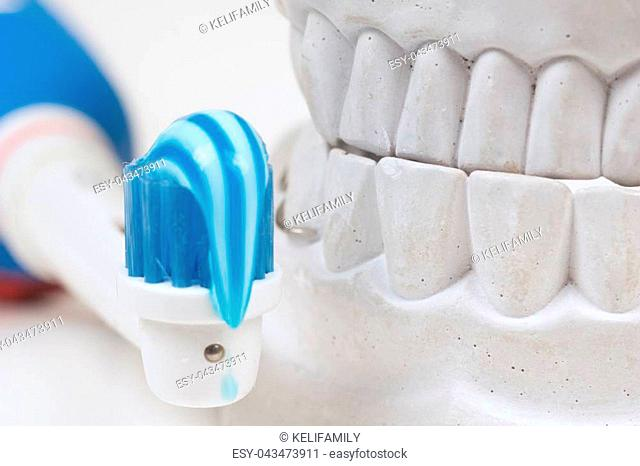 Dental mould, isolated on a white background