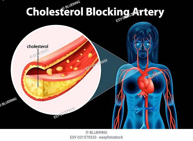 Illustration of cholesterol blocking artery