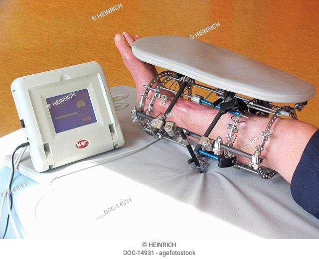 Magnetic field therapy as supplementary therapy - it supports the microcirculation in the tissue and stimulates so Regulations and selfcure processes - cells...