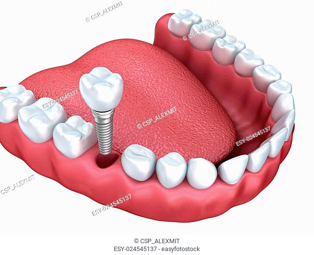 3d lower teeth and dental implant isolated on white