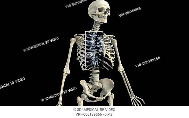 An anti-clockwise rotation of the skeletal system with the thoracic region of the spinal column highlighted which then fades to a detail of the thoracic region