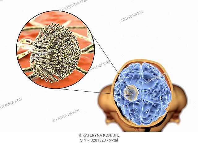 Aspergilloma of the brain, illustration