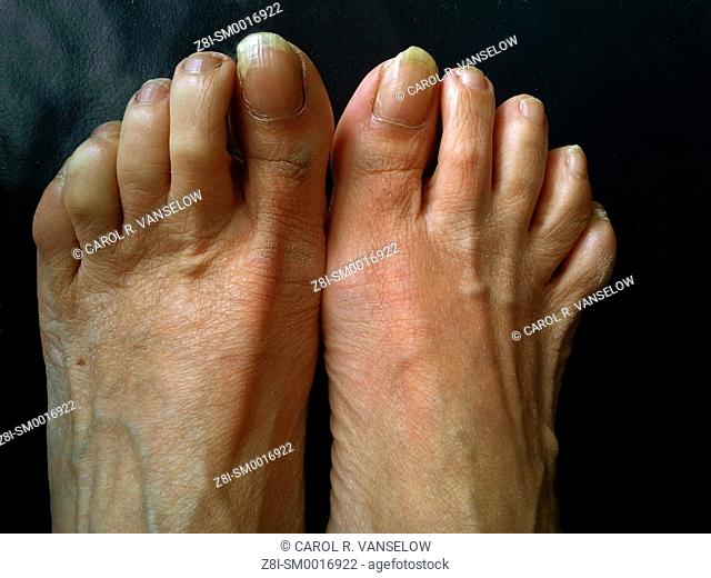 Feet of a woman who is in serious need of a pedicure. Uneven and calciferous nails