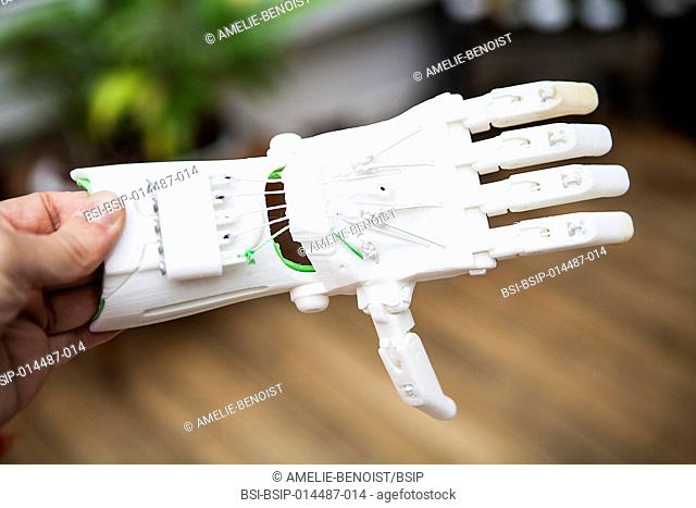Reportage on the E-nable project. The project concept is to put volunteers with a 3D printer in touch with handicapped children who need a hand prosthesis