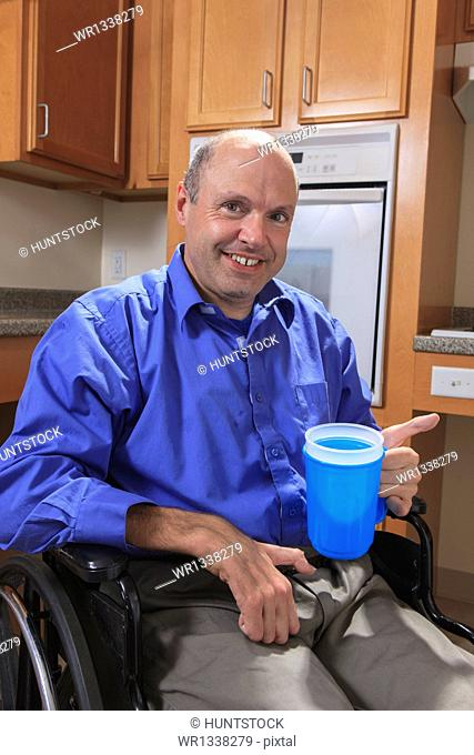 Man with Friedreich's Ataxia holding a cup of water with his deformed hands