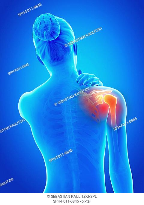 Human shoulder pain, computer illustration