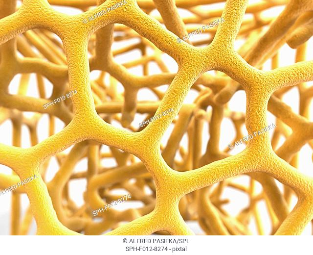 Osteoporosis. Computer artwork of the trabeculae in the cancellous (spongy) bone tissue affected by osteoporosis. The cancellous tissue fills the interior of...