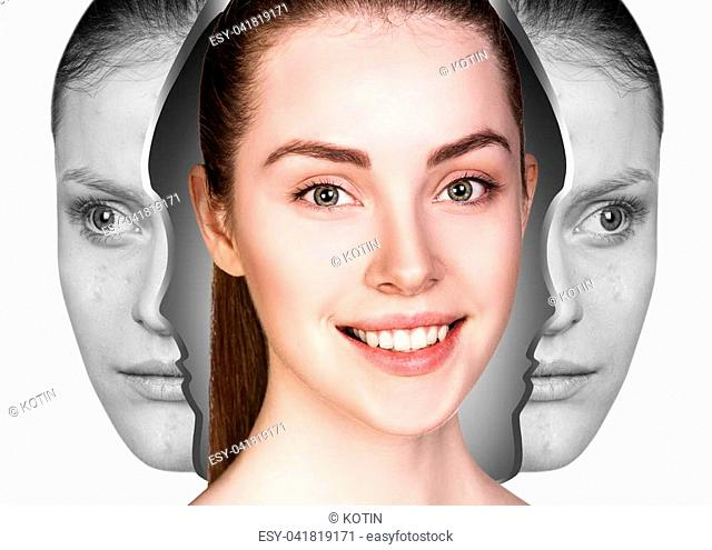 Young woman rebirth from bad acne skin to perfect. Before and after treatment