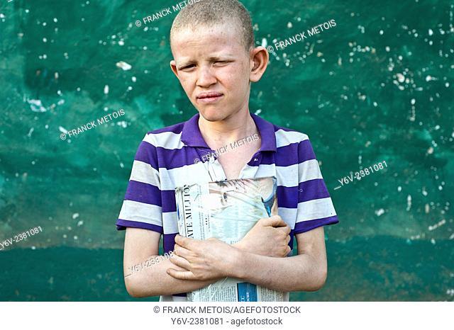 Albino boy holding his school book Ethiopia