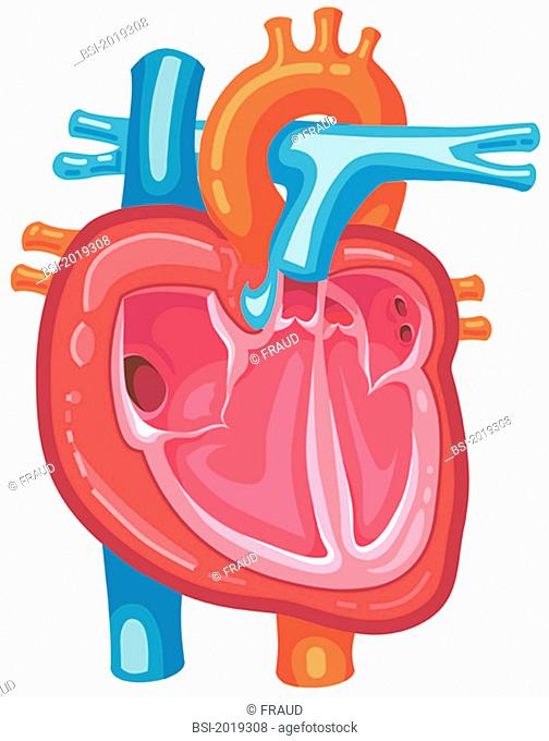 Representation of the heart with the superior and inferior vena cavae, the right atrium and the tricuspid valve, the right ventricle and the pulmonary valve
