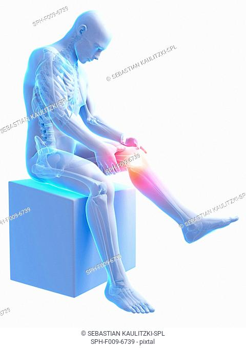 Human knee pain, computer artwork