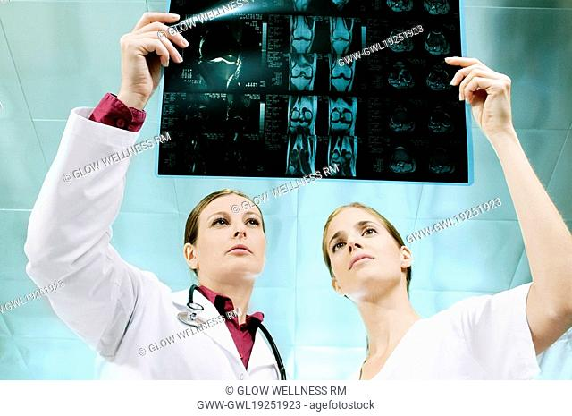 Female doctor and a nurse examining an X-Ray
