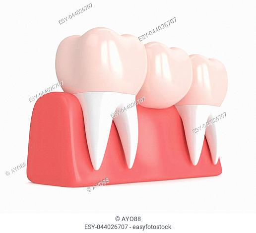 3d render of dental bridge with dental crowns in gums isolated over white background