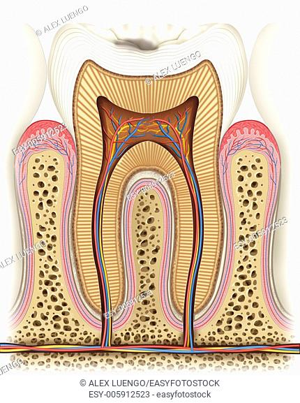 Illustration of dissection of a tooth which appears and early depiction of caries