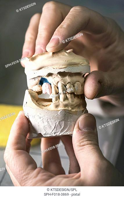 Dental mold with prosthetic tooth, close up