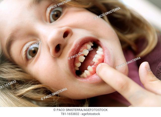 Girl pointing chipped teeth