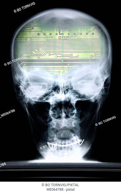 Cranium, skull, x-ray, robot