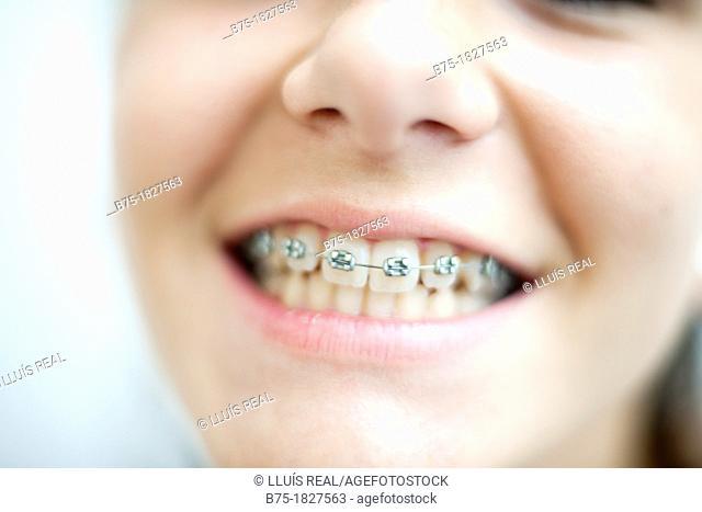 ortodoncia, primer plano de boca de chica adolescente con aparatos en los dientes, Orthodontics, mouth foreground teenage girl with braces on teeth