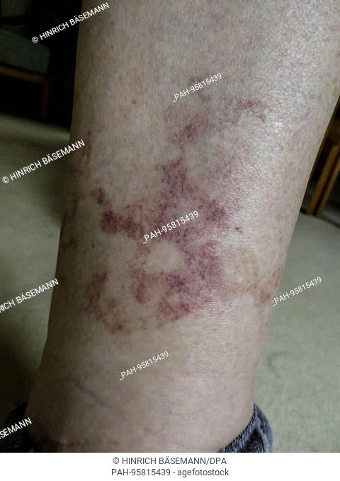 nettle rash on lower leg, october 2017 | usage worldwide. - Hamburg/Hamburg/Germany