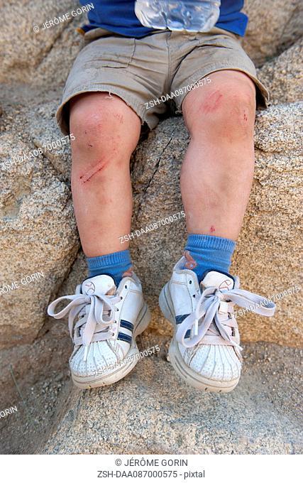 Child's scraped legs