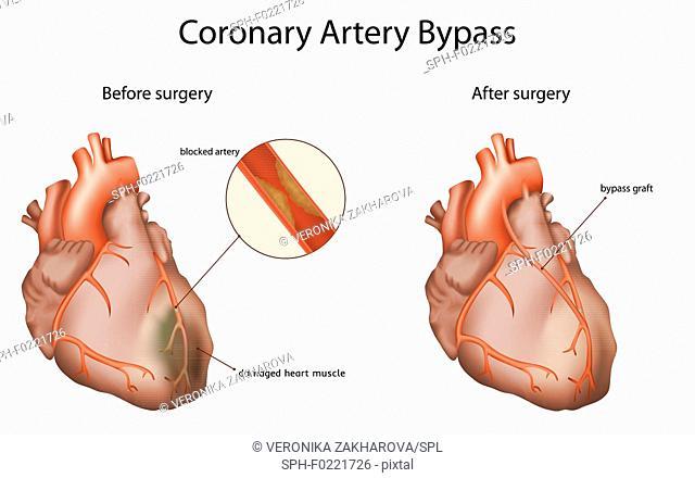 Coronary artery bypass, illustration