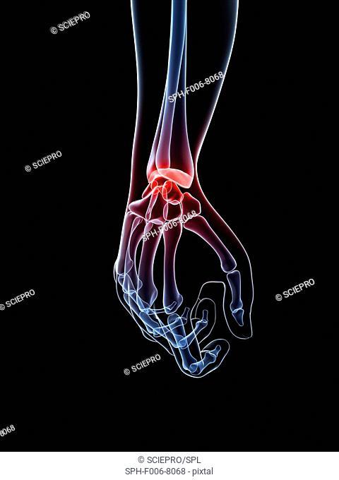 Wrist pain, conceptual computer artwork