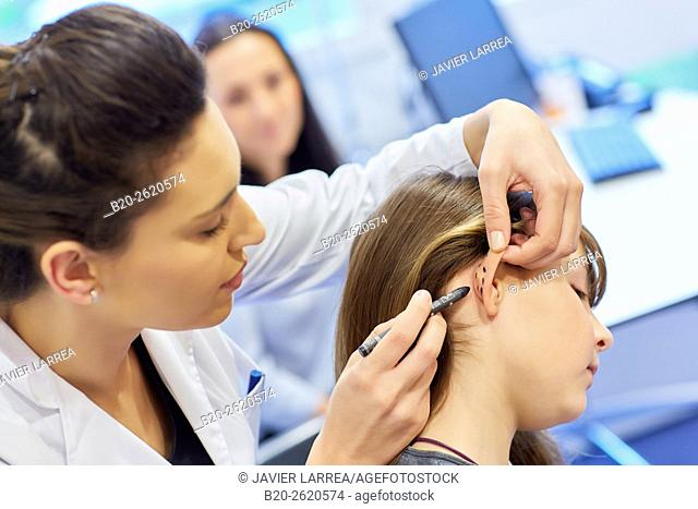 Otoplasty. winged ears. Malformation there is an absence antehelix crease. Otoplasty involves molding the ear cartilage to create a new fold