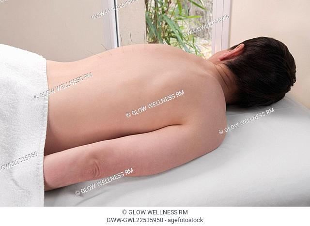 Acupuncture needles on a person's back