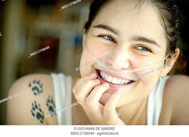 Close-up of a smiling girl with nasal cannula. Padua (Italy), September 2014
