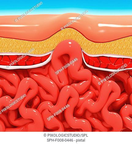 Ventral hernia, computer artwork