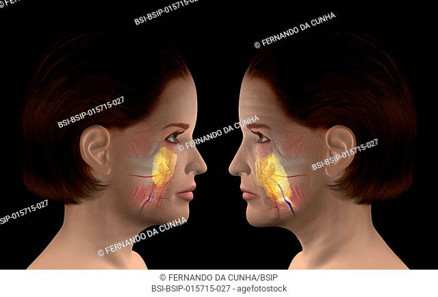 Illustration of skin aging. Wrinkles appear, muscles become slack and do not hold fat anymore, which leads to sagging, cheeks become hollow